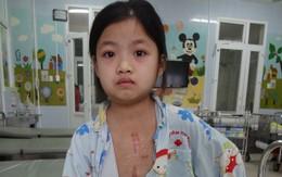 Bé gái 2 lần mổ tim ngày càng yếu