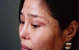 Mắt biến dạng vì cắt mí