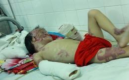 Vòng tay nhân ái (MS 135): Hoàn cảnh thương tâm của cháu bé bị bỏng làm biến dạng mặt