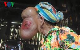 """Hãi hùng mụn cơm biến thành khối u """"khủng"""" lấp kín gương mặt người phụ nữ"""