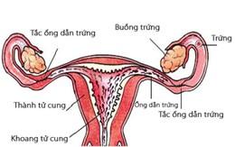 Các phương pháp chẩn đoán tắc nghẽn vòi trứng hay không