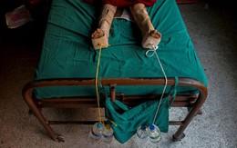 Hàng nghìn người sống sót động đất Nepal có thể tàn tật suốt đời