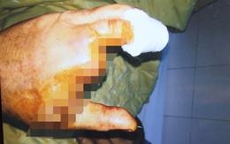 Một Việt kiều Mỹ bị chém tới tấp trước cổng nhà riêng