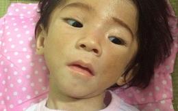 Bé gái 14 tháng nặng chỉ 3,5 kg thay da đổi thịt sau 1 tuần được chăm sóc