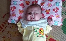 Cháu bé 5 tháng tuổi nhiễm trùng máu bị biến chứng não