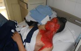 Tự chế thuốc pháo, nam sinh bị bỏng nặng