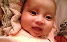 Sự sống mong manh của bé 5 tháng tuổi bị nhiễm trùng máu