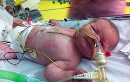 Sức sống kỳ diệu của em bé sinh ra chỉ với nửa trái tim