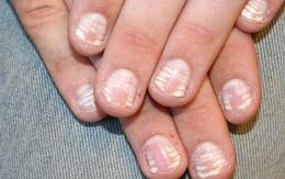 Môi bợt, da xanh, móng tay dễ gãy là bệnh gì?