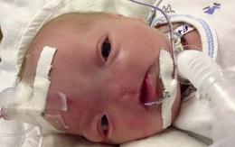 """Dù không có mũi, nhưng cậu bé này vẫn được bình chọn là """"em bé có gương mặt đáng yêu nhất"""" trên Facebook"""