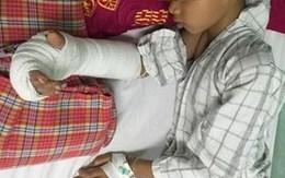 Nối bàn tay bị đứt gần lìa cho bé trai 8 tuổi