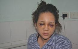 Vụ thiếu uý công an đánh bạn gái chấn thương sọ não: Nạn nhân bất ngờ rút đơn tố cáo