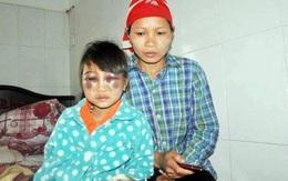 Vụ cô giáo đánh tím mặt học trò: Lo sợ các em bỏ học