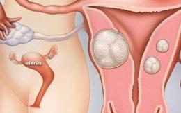 Nguyên nhân và cách phòng ngừa u xơ tử cung hiệu quả