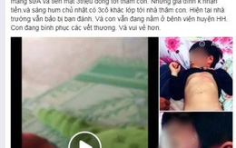 Sáng mai thông tin chính thức vụ bé gái 4 tuổi bị đánh bầm tím tại trường
