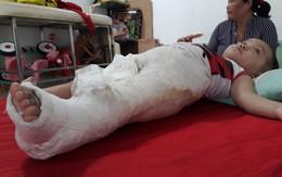 Bình Dương: Cần làm rõ vụ cháu bé 15 tháng tuổi bị gãy chân tại nơi giữ trẻ
