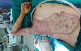 Vừa phẫu thuật sọ não, nam thanh niên lại bị máy bóc gỗ lột mất nhiều phần da