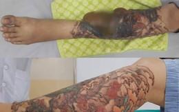 Xoá xăm bằng laser ở thẩm mỹ viện, cô gái trẻ bị bỏng kinh hoàng toàn bộ cẳng chân