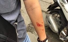 Vụ 2 sinh viên bị quản lý trung tâm gia sư đánh chảy máu mũi: Không chấp nhận việc xin lỗi qua loa