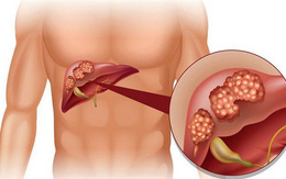 Nhiễm virus viêm gan B - nguy cơ mắc ung thư gan cao gấp 200 lần