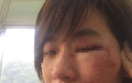 Đã xác định được danh tính nhóm thanh niên xăm trổ hành hung nữ nhân viên xe buýt