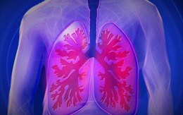 Người phụ nữ được chẩn đoán ung thư phổi do không mang vật dụng này theo khi ra đường, bác sĩ nhắc nhở việc mà ai cũng nên làm