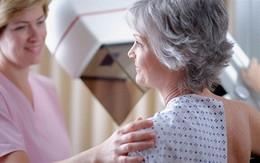 Tầm soát ngay từ tuổi 40 để phòng ngừa ung thư vú khi về già