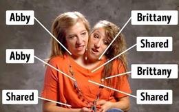 Cuộc sống sau 29 năm của cặp chị em sinh đôi dính liền thân nổi tiếng thế giới