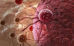 Đáp ứng được 6 điều, chứng tỏ bạn có một 'cơ thể miễn dịch với ung thư'