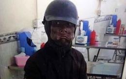 """Người mặt đen """"quái dị"""" cầm đầu gà đi ăn xin ở Hà Nội khiến dân mạng hốt hoảng"""