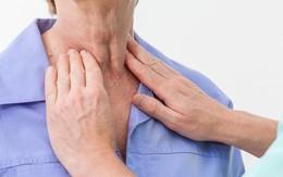 Dấu hiệu cảnh báo sớm ung thư vòm mũi họng - loại ung thư hàng đầu vùng đầu cổ