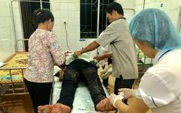 Nam Định: Nam thanh niên chém người ra đầu thú
