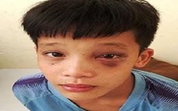 Phẫu thuật lấy 3 chiếc đinh ghim chặt vào hốc mắt cậu bé ở Thanh Hóa