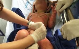 Diễn biến mới vụ 3 trẻ mầm non bỏng nặng vì cô giáo đốt cồn dạy kỹ năng... phòng cháy