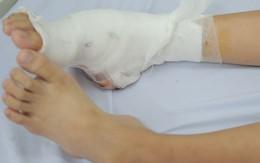 Bé gái ở Hà Nội có bàn chân dị dạng siêu hiếm gặp, 7 năm không tìm ra bệnh