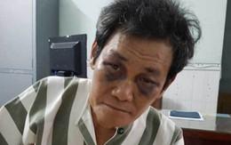 """TP.HCM: """"Yêu râu xanh"""" 63 tuổi dâm ô bé gái trong hẻm bị tạm giam lại"""