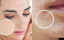 Bác sỹ da liễu bày cách đơn giản khiến bạn không bị da khô, nứt nẻ trong những ngày thu hanh