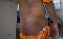 Không khởi tố vụ 4 cháu nhỏ bị bạo hành ở Cà Mau