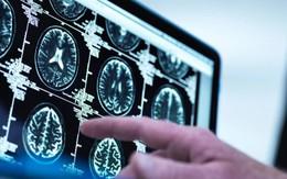 10 dấu hiệu ung thư sớm nhiều người thường chủ quan