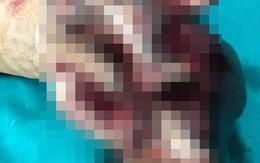 CẢNH BÁO: Hình ảnh tổn thương đáng sợ của bàn tay vì nồi lẩu liên hoan cuối năm