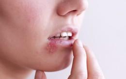 Những nhầm tưởng về mụn rộp sinh dục herpes mà không ít phụ nữ mắc phải