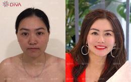 Ghép mỡ mặt tự thân – tạo dáng khuôn mặt chuẩn tỷ lệ vàng không phẫu thuật