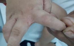 Ký sinh trùng lúc nhúc dưới lớp da tổn thương của bệnh nhi