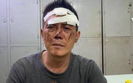 Gã đàn ông dùng kim tiêm uy hiếp cô gái trẻ ở quận 1