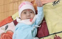 """Kỳ tích y khoa và hành trình đầy """"phép nhiệm màu"""" của bé gái chào đời nặng chỉ gần... 5 lạng"""