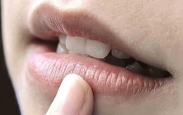 4 dấu hiệu bất thường trên miệng nhận biết có thể bạn đang mắc bệnh tim, cần chủ động đi khám sớm