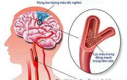 Giải pháp hỗ trợ giảm nguy cơ tai biến cho người cao huyết áp