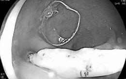 """Vòng tránh thai """"lạc chỗ"""" đâm xuyên thành trực tràng nữ bệnh nhân"""