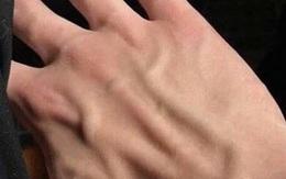 Tự kiểm tra sức khỏe mạch máu tại nhà theo cách đơn giản chỉ với ngón tay và 3 bước thực hiện