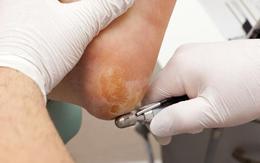 """Gót chân thường xuyên bị khô và nứt nẻ, coi chừng sức khỏe đang """"kêu cứu"""""""